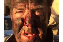 Jeremy Clarkson verletzt
